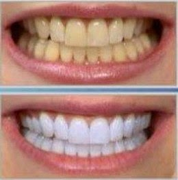 Aprenda Como Fazer Clareamento Dental Caseiro Geraldo Souza